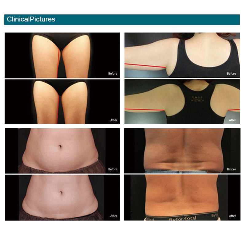 Cryolipolysis_effect