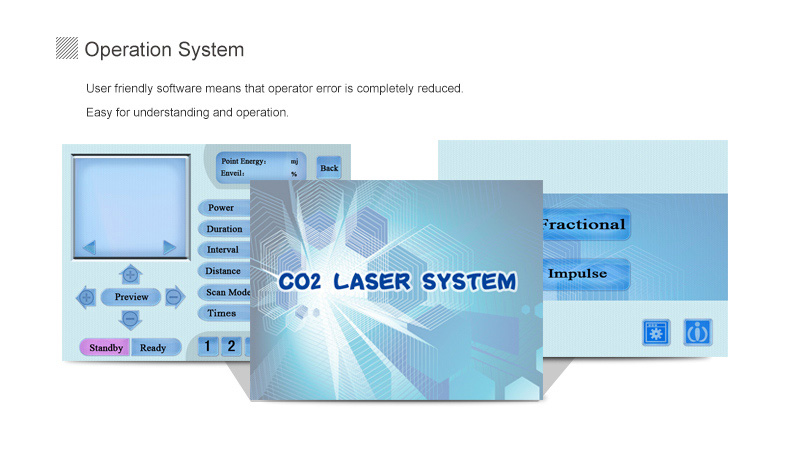 co2-laser-vaginal-equipment_Interface