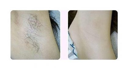 Summer hair removal look here